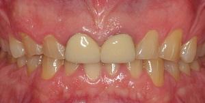 Blanqueamiento dental y coronas de porcelana procera