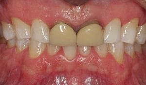 Foto 3: Blanqueamiento dental