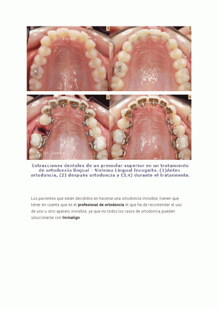 La ortodoncia invisible en casos complejos