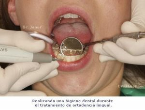 Higiene dental con ortodoncia lingual