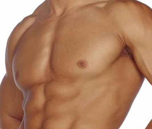 Ginecomastia en hombres: qué es, causas y tratamiento