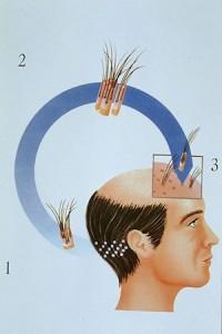 Técnica FUE Trasplante de pelo