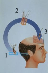 Técnica FUSS Trasplante de pelo