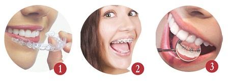 Consejos de higiene con ortodoncia