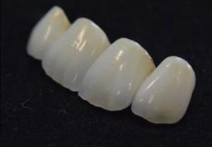 Prótesis dentales, todo lo que necesitas para una buena sonrisa