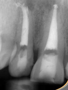 El tratamiento de endodoncia