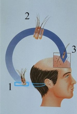¿Cómo se realiza un injerto capilar-Técnica FUSS o trasplante de pelo con la técnica de la tira?