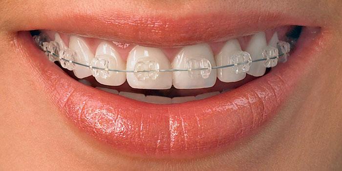 brackets-transparentes-ortodoncia-friedlander