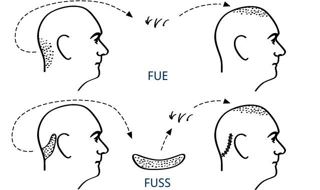trasplante-de-pelo-tecnica-fue-o-fuss