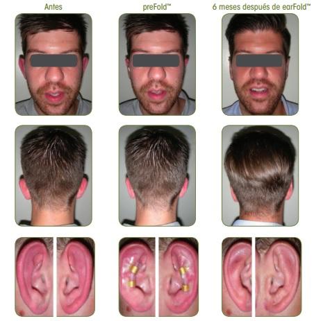 caso-real-earfold