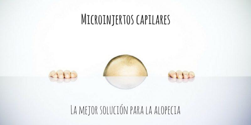 Microinjertos, la mejor solución para la alopecia