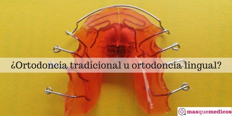 ortodoncia lingual o tradicional