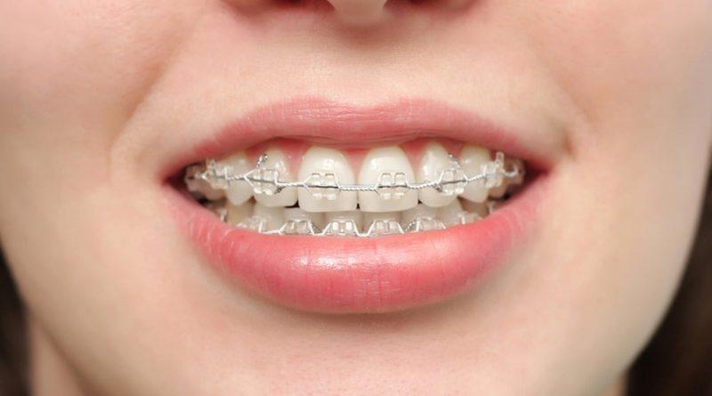 historia de la ortodoncia