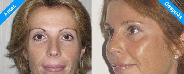 lifting facial 2