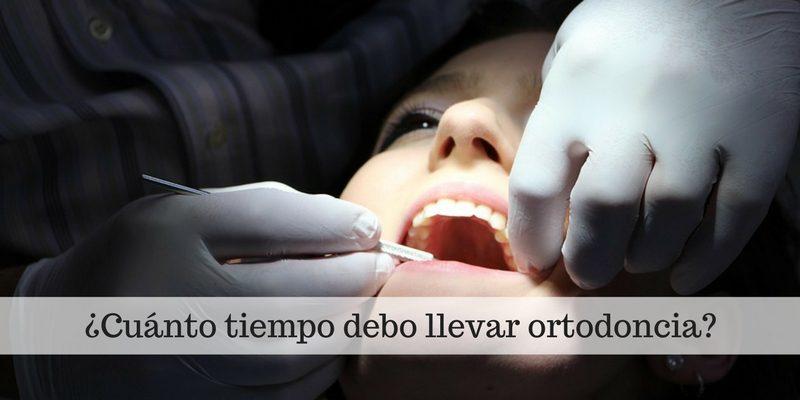 ¿Cuánto tiempo debo llevar ortodoncia-