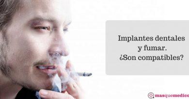 implantes dentales y fumar