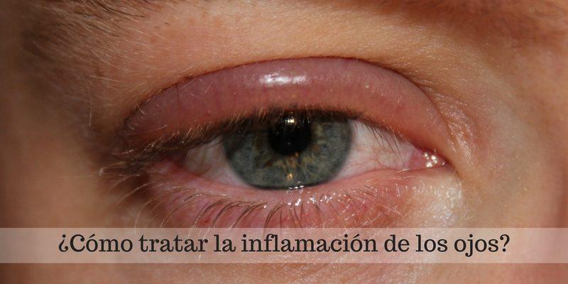 cómo tratar la inflamación de los ojos