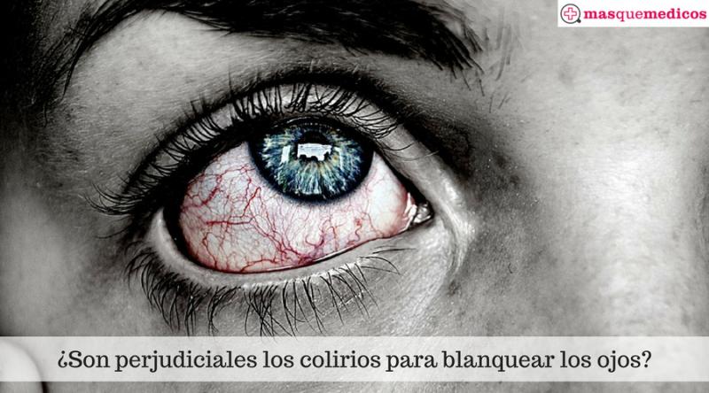 ¿Son perjudiciales los colirios para blanquear los ojos-