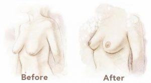 Tratamiento de la caída leve o moderada de las mamas sin mastopexia