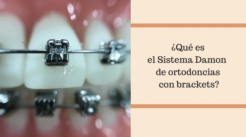 ¿Qué es el Sistema Damon de ortodoncias con brackets-