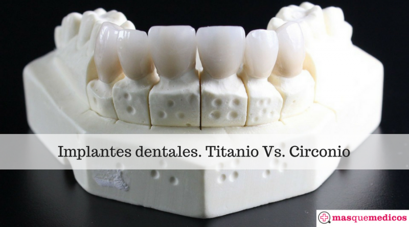 Implantes dentales. Titanio Vs. Circonio