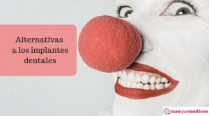 ¿Qué alternativas hay a los implantes dentales?