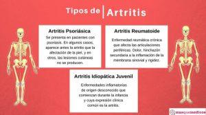 Tipos de artritis. Síntomas y diagnóstico