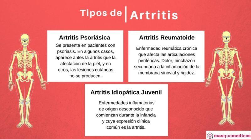 artritis reumatoide joven mas comun