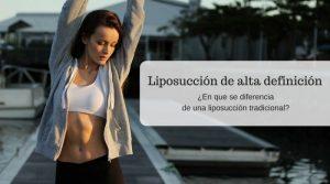 ¿Qué es la liposucción de alta definición?
