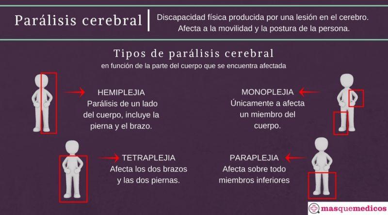 Tipos de parálisis cerebral