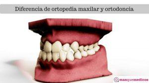 ¿Cuál es la diferencia de ortopedia maxilar y ortodoncia?