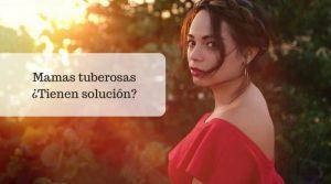 ¿Qué son las mamas tuberosas y cómo tratarlas?