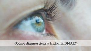 ¿Cómo diagnosticar y tratar la Degeneración Macular Asociada a la Edad?