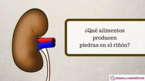 ¿Qué alimentos producen piedras en el riñón?