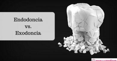 Endodoncia vs.Exodoncia