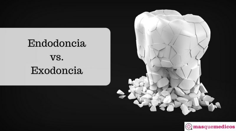 Endodoncia vs.Exodoncia
