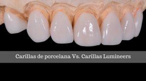 ¿Cuál es la diferencia entre las carillas de porcelana y las carillas Lumineers?