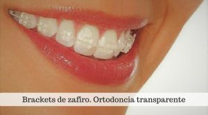 Ortodoncia transparente. Características y ventajas