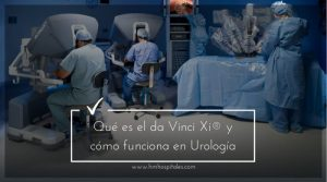 Qué es el robot da Vinci Xi® y cómo funciona en Urología