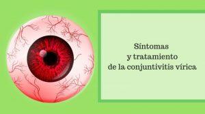 Síntomas y tratamiento de la conjuntivitis vírica