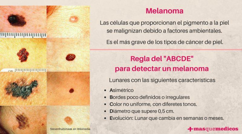 Regla ABCDE para detectar el melanoma