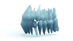 Cambios en el diseño de los implantes dentales