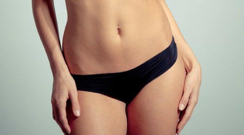vaginoplastia