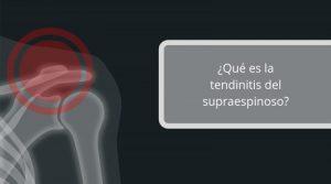 ¿Qué es la tendinitis del supraespinoso?