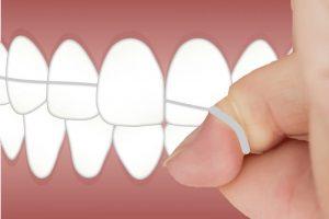 ¿Por qué debes usar seda dental en tu higiene bucal?