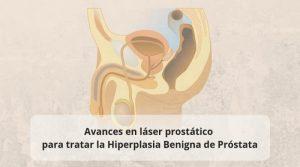 Avances en láser prostático para tratar la Hiperplasia Benigna de Próstata