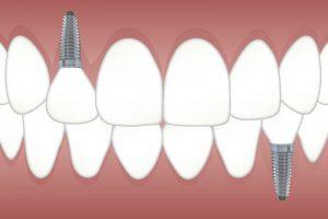 Periimplantitis. Infección en la zona del implante dental