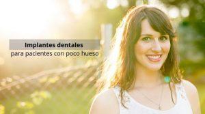 Implantes dentales para pacientes con poco hueso