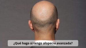 ¿Qué hago si tengo alopecia avanzada?