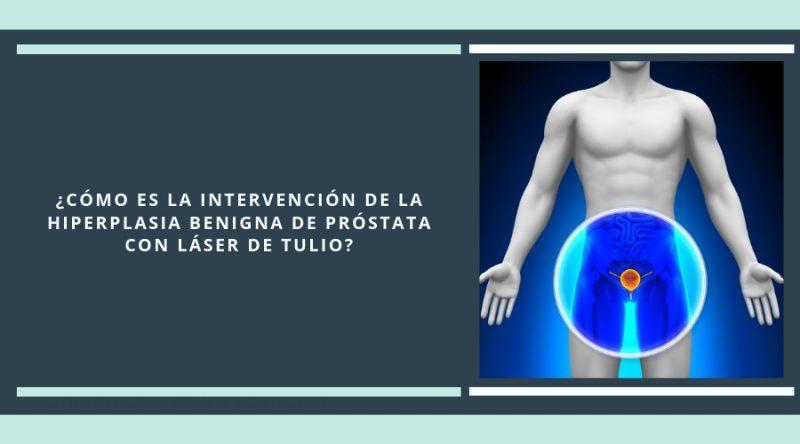 operación benigna de próstata con láser de